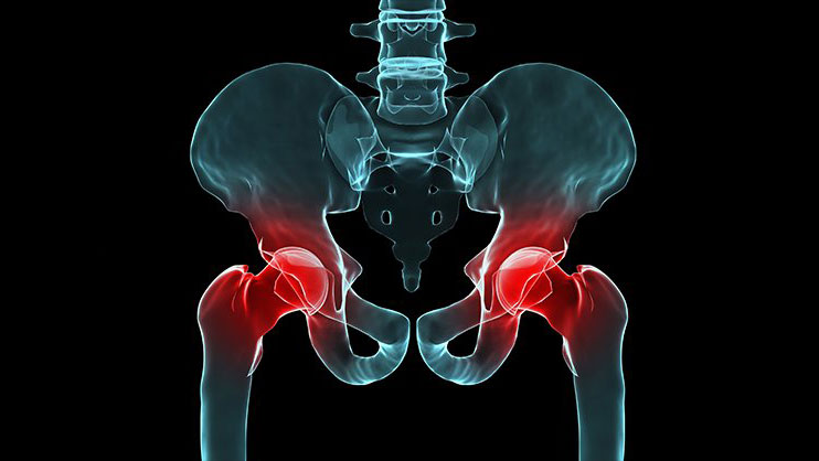 Sacroiliitis Joint Pain Treatment
