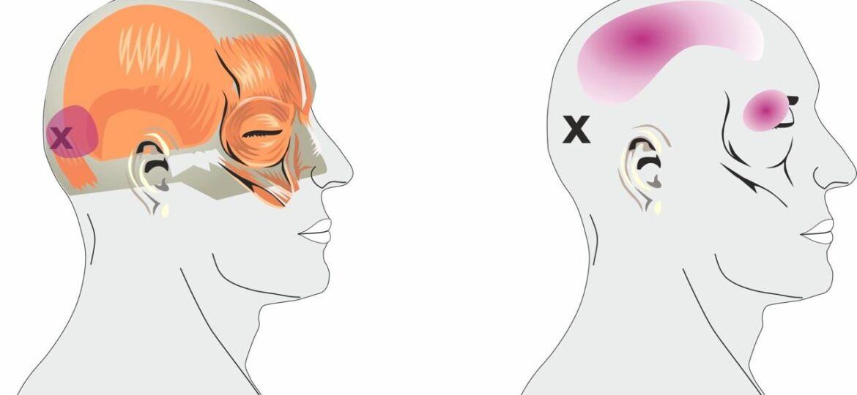 Tension-Headache-pain-felt-on-top-of-the-head-2